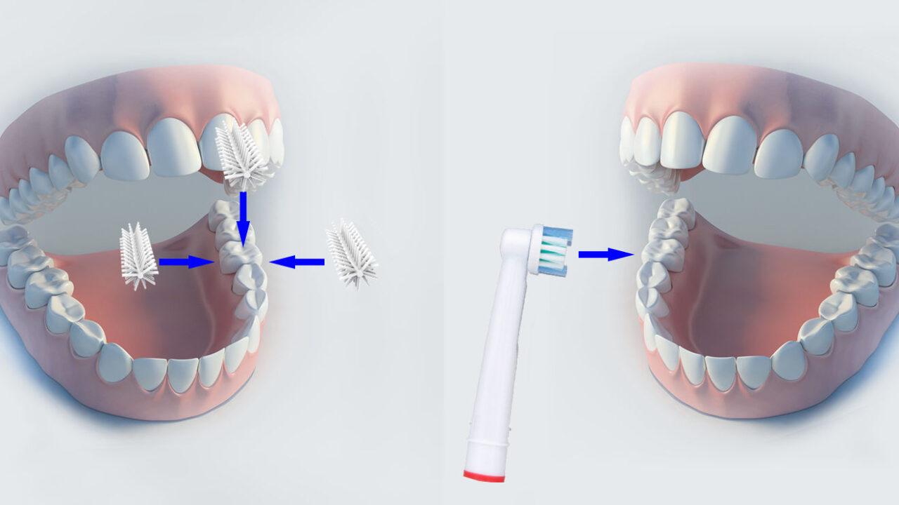 GlareSmile: Zähne putzen in nur zehn Sekunden