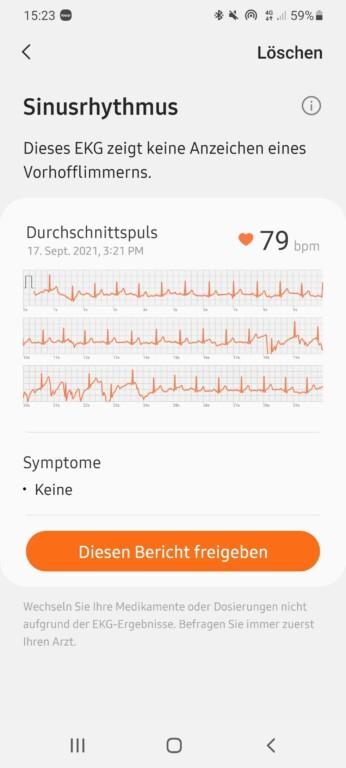 Die Daten lassen sich zum Teil exportieren - zum Beispiel für einen Arzt. (Screenshot)