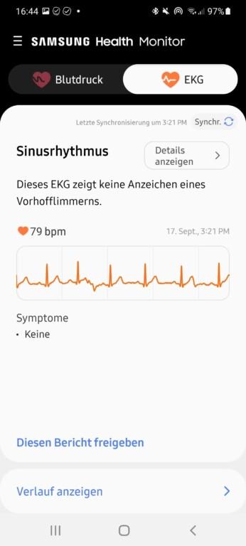 EKG-Werte. (Screenshot)